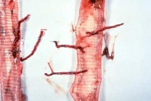 larves de syngamose