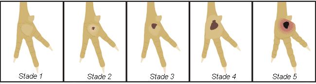 evolution stades pododermatite